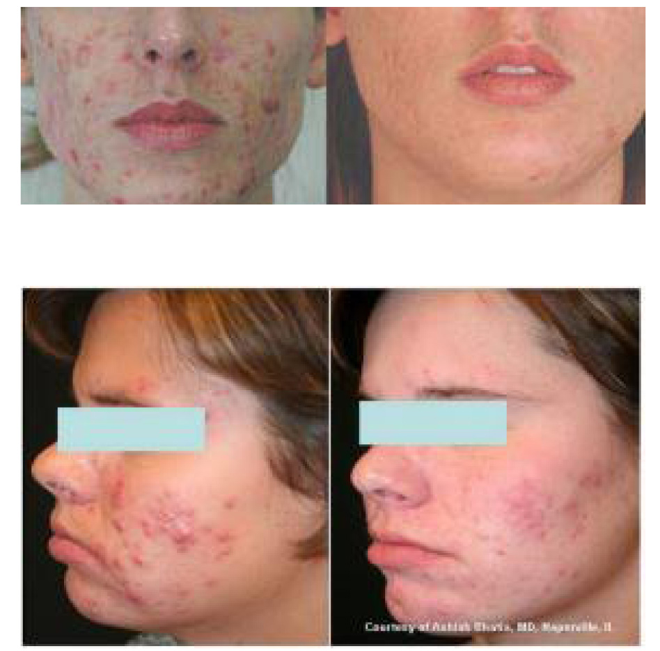acne suppression, acne damage repair